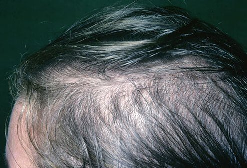 Woman with hair loss.