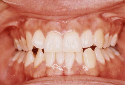 Teeth grinding, also known as bruxism, can be an inherited trait.