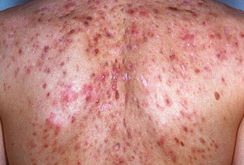 Gain health information for one of the most harmful conditions to your skin health: Acne conglobata.