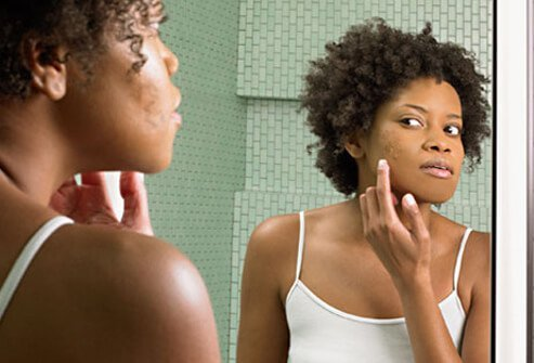 A woman checks her acne in the mirror.