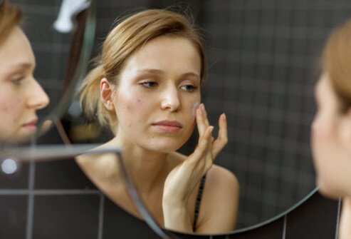 Photo of woman looking in mirror and applying ointment to her acne