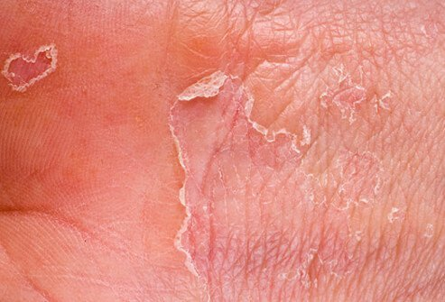 Eczema (atopic dermatitis) starts as a cluster of blisters that turns into a scaly, itchy rash.