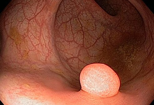 A colon polyp could be linked to vitamin D levels.