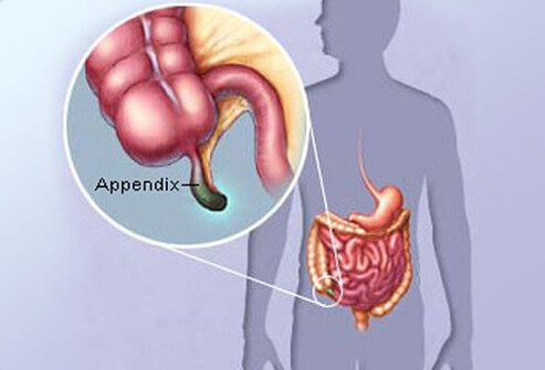 Appendix Pain? Appendicitis, Surgery, and More
