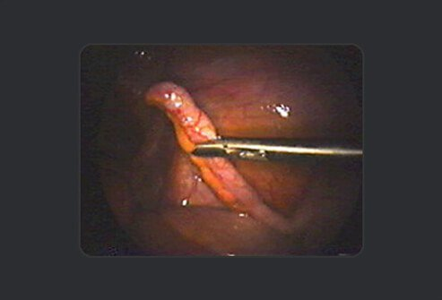 Step 1 of 8: The appendix is located in the lower abdomen.