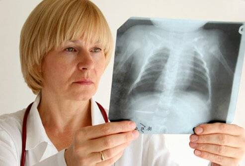 A doctor looks at a chest X-ray of a patient with asthma.