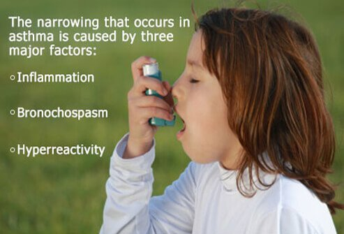 The narrowing that occurs in asthma is caused by inflammation, bronchospasm, and hyperreactivity.