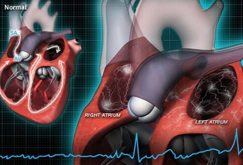 Illustration of heart rhythm activity.