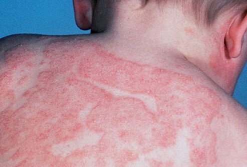 Atopic dermatitis (eczema) on an infant's back