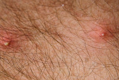 One of the most painful insect stings comes from fire ants.