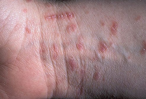 Scabies mite infestation showing resulting in a rash and sores on the wrist.
