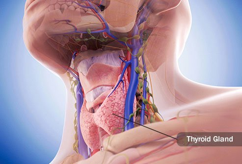 Hypothyroidism can bring on intense body pain.