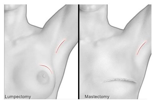 Breast cancer surgery for the removal of tumors.