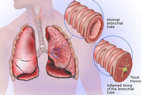 Illustration showing a normal bronchial tube and an inflamed bronchial tube with build-up of mucus.