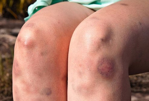 Image result for bruise