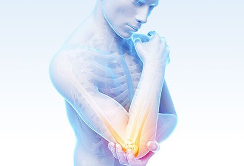 Bursitis is inflammation of the bursae, the fluid-filled sacs that protect against friction between bones and other tissues.