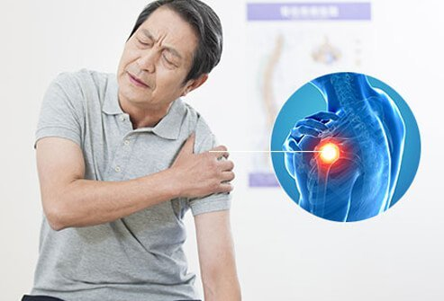 A man with shoulder pain and 3D model of shoulder.