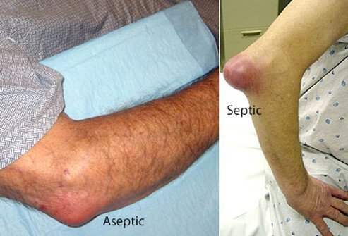 Example of aseptic (left) and septic (right) bursitis.
