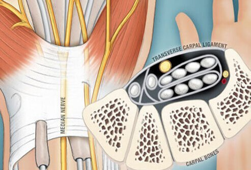 If the median nerve is compressed or pinched, it leads to carpal tunnel syndrome symptoms.