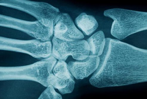 Photo of wrist x-ray.