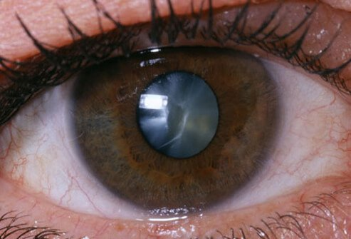 Cataracts are a painless clouding of the internal lens of your eye.