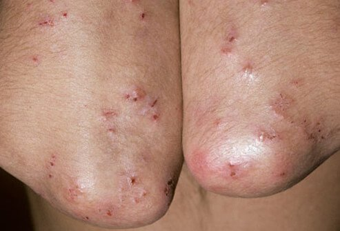 Dermatitis herpetiformis due to celiac disease.