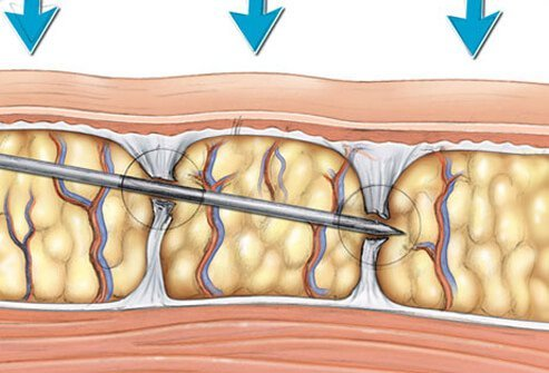Illustration of subcision treatments.