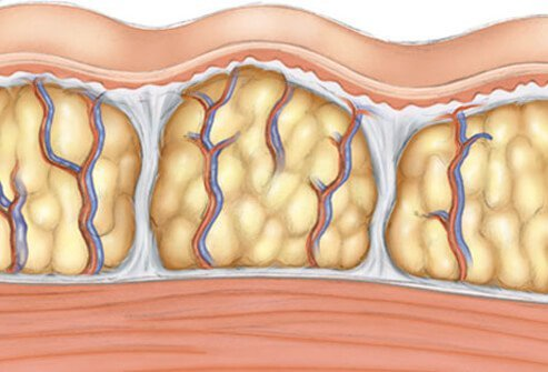 An illustration of cellulite.