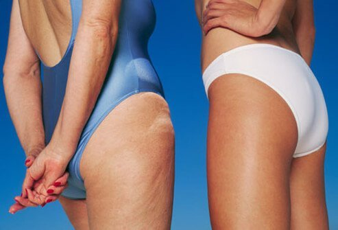 Cellulite Facts and Treatment Options