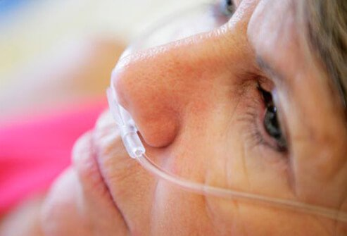 Photo of woman during oxygen treatment for COPD.