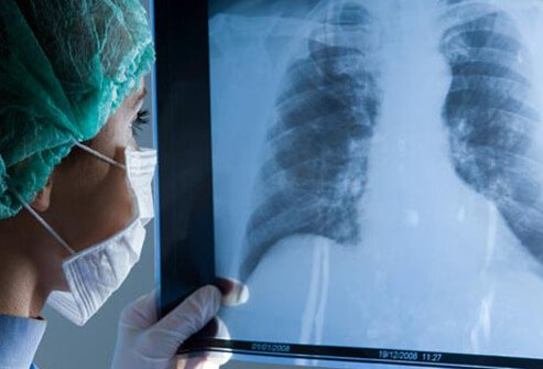 A surgeon reviewing a lung x-ray before surgery for COPD .