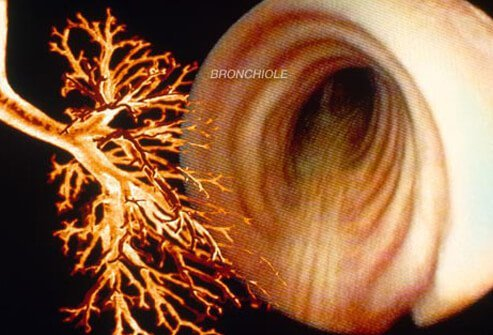 Photo of chronic bronchitis.