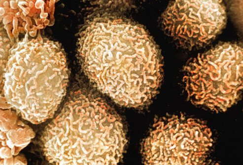 Photo of colon cancer cells
