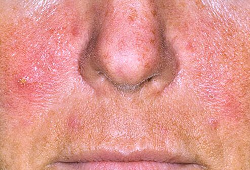 Adult Lesions On Face