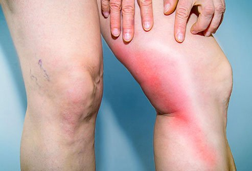 Leg Pain: Causes and Treatment for Leg, Calf and Thigh Pain