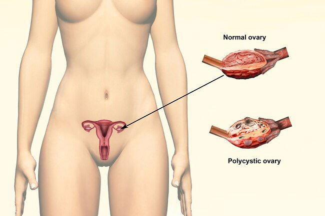 You may lose hair when you have polycystic ovary syndrome (PCOS).