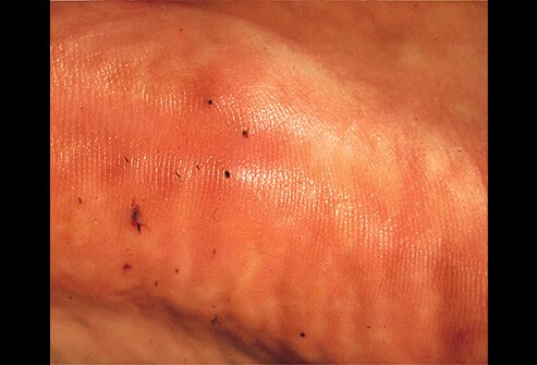 Stepping or falling on a sea urchin is painful, causing its tiny, thin spines to dislodge and potentially embed into your skin.