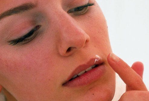 A woman applies herpes medication to her lip.