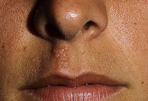 Cold Sores Causes Remedies Amp Diagnosis