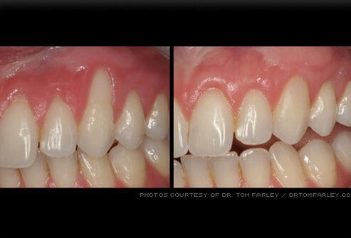 Gum recession fixed by grafting surgery.
