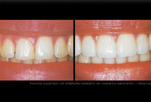 Uneven gum line refined by gum reshaping.