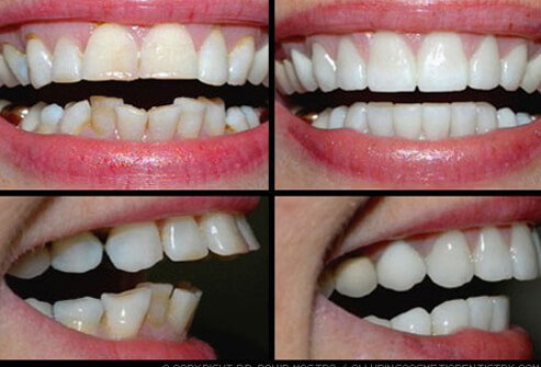 Smile makeover corrects multiple dental problems.