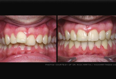 Misaligned teeth before and after braces.