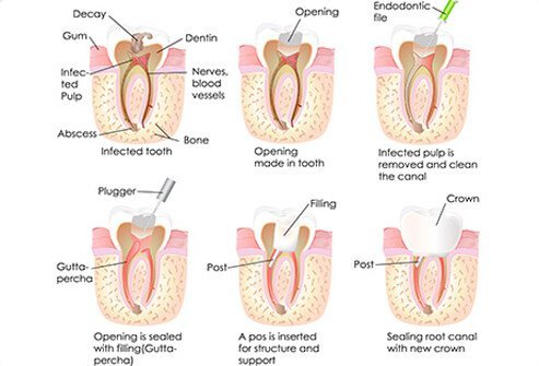Step by step illustration of a root canal procedure.
