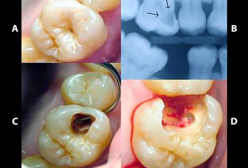 Dental Images Of Cavities Dry Sockets Gingivitis