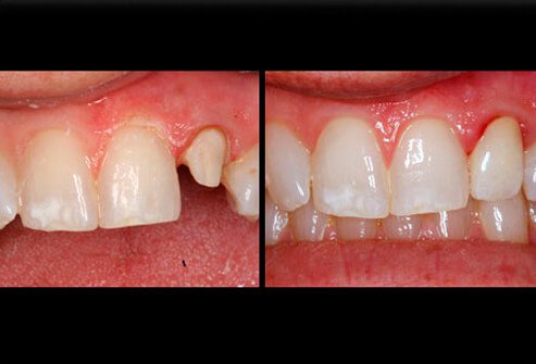 Before and after picture of a damaged tooth that was improved with a crown.
