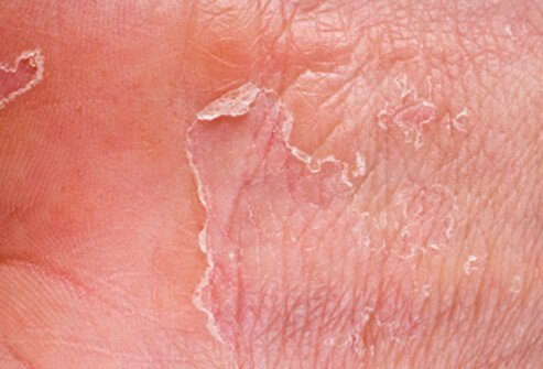 does diabetes cause dry skin