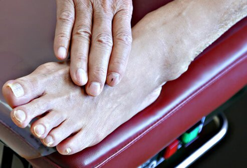 beneficial affects of nursing and diabetic foot essay Risk factors contributing to type 2 diabetes and recent advances in the treatment and prevention diabetic neuropathy may be associated with foot ulcers.