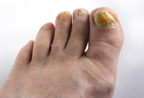 How Diabetes Can Affect Your Feet