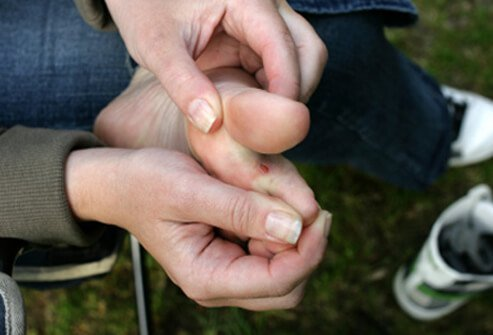 Blisters can form when your shoes rub the same spot on your foot.